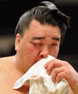 Harumafuji blessé à l'œil
